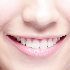 審美歯科イメージ画像