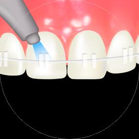 歯のクリーニングイメージ画像